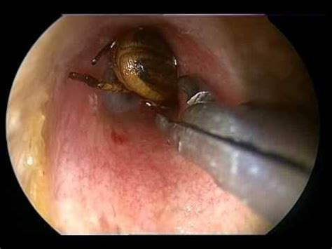 can bed bugs get in your ear how long can a bug that s trapped inside the ear be alive