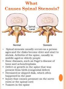 Spinal stenosis d diagnosis is severe stenosis of l4 l5