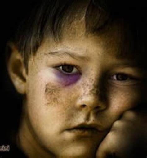 imagenes ninos maltratados maltrato infantil galeria de ni 241 os maltratados