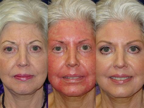 light chemical peel before and after chemical wrinkle removal robert kotler m d