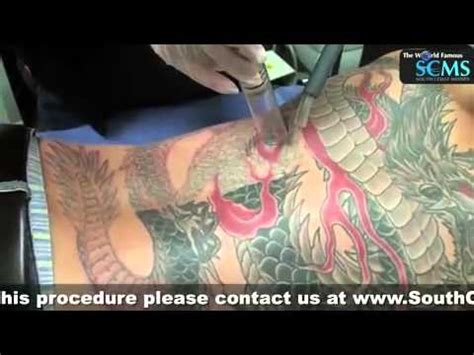 color tattoo removal laser removal melbourne