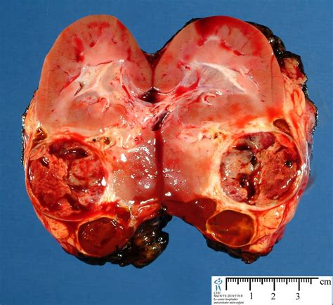 tumor pictures post chemotherapy wilms tumor humpath human pathology
