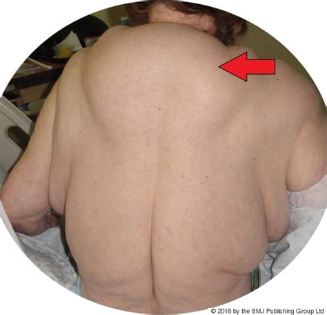 lump on s back fatty lumps on s are a result of 40 years of heavy graphic