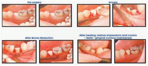 Excuse Letter Ulcer Procedure For E Filling Of Treatment Modalities For A Permanent Tooth With