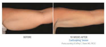 coolsculpting at home coolsculpting before and after albuquerque coolsculpting
