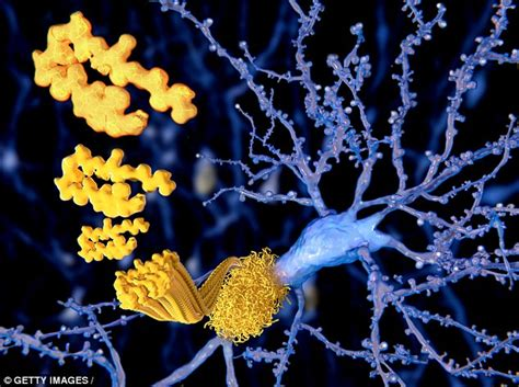 40 hertz led lights flickering led lights could be cure for alzheimer s