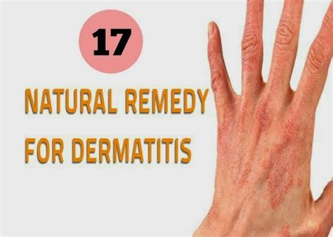 house cures for dermatitis common skin problems solutions