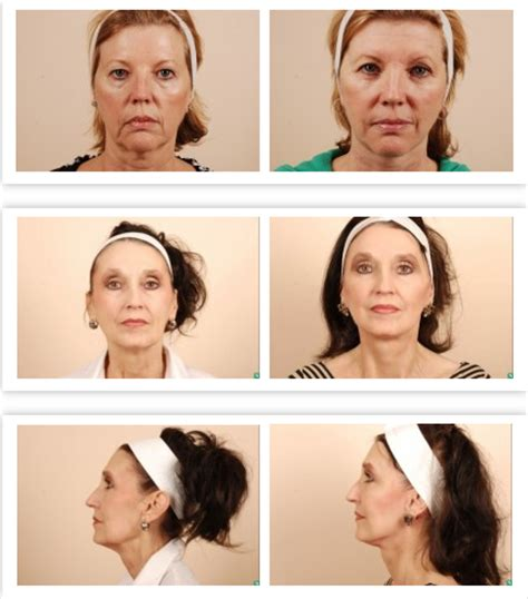 lifestyle lift lifestyle lift blog cost pictures how much does a facelift cost buildmybod plastic surgery blog