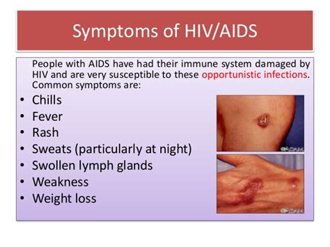 symptoms of hiv aids infection hiv symptoms symptoms of human immunodeficiency virus