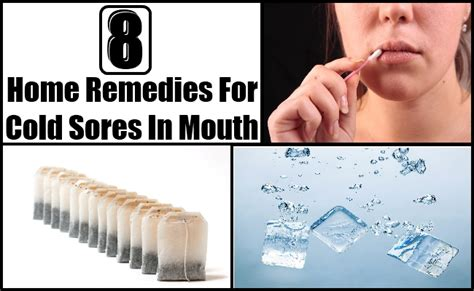 8 home remedies treatments cure for cold sores