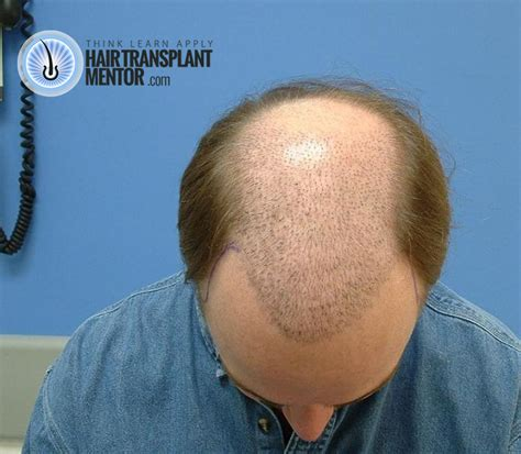 shaved hair from surgery hair transplant scar repair