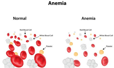 7 Ways To Prevent Anemia by Anemia Prevent Juices With Ultra Intensive Effectshealth