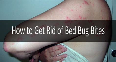 how to get rid of bed bug bites fast bed bug bites 8 definite symptoms and signs and their