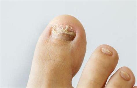 tratamiento de hongos y megabacterias tratamiento para hongos en los pies entre los dedos