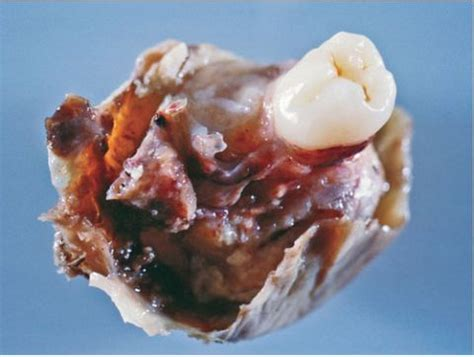 tumor with hair and teeth images teratoma a tumor that can grow teeth hair and bones