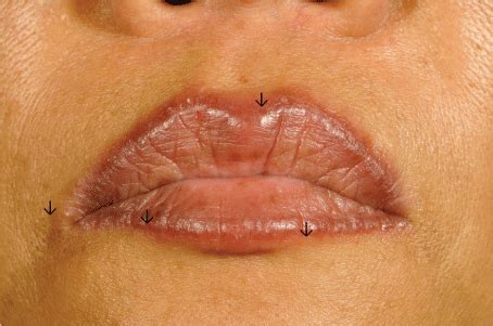 tattoo ink without nickel figure 1 nodules at the tattooed periphery of the lips