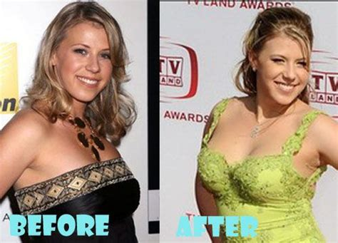 Jodie Sweetin Has Talent by Jodie Sweetin Plastic Surgery Before And After Picture