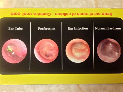 ear infection picture what does ear infection look like breeds picture