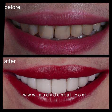 Biaya Pemutihan Gigi Di Jakarta Smile veneer gigi murah jakarta 7 audy dental