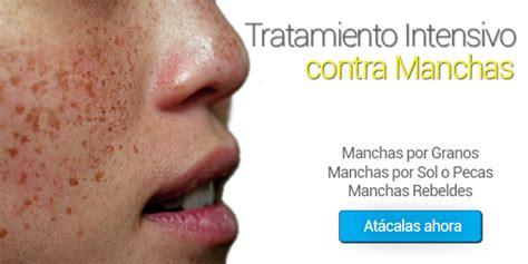 tratamientos tratamientos para las manchas tratamiento para manchas intensivo de 4 semanas