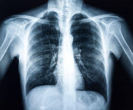 tesla x rays x hospital of st st elizabeth