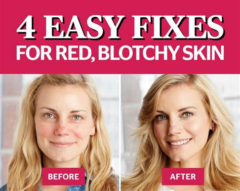 Vegan Detox Caused Bloutchy Itchy Skin by 4 Easy Hacks To Fix Your Blotchy Skin We The O