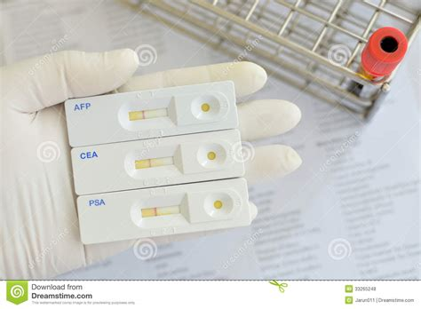 protein z lab test tumor marker testing royalty free stock photos image