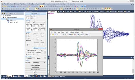 shown in using matlab with curry 7 compumedics neuroscan