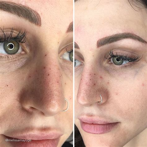 tattoo away freckles people are tattooing freckles on their face because it s