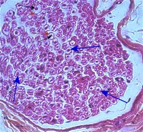 peripheral nerve cross section living with epilepsy cross section of a nerve fiber