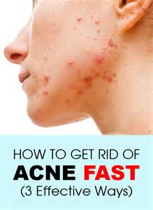 how to get rid of acne fast 3 effective ways
