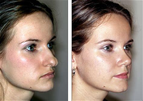 Plastik Naso dr steven denenberg s plastic surgery before and