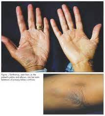 steatorrhea symptoms steatorrhea