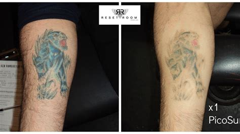 tattoo removal aberdeen reset room before after photos of picosure laser