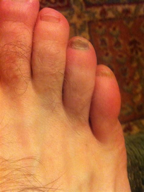 Toenail Melanoma Pictures toenail melanoma picture pictures photos