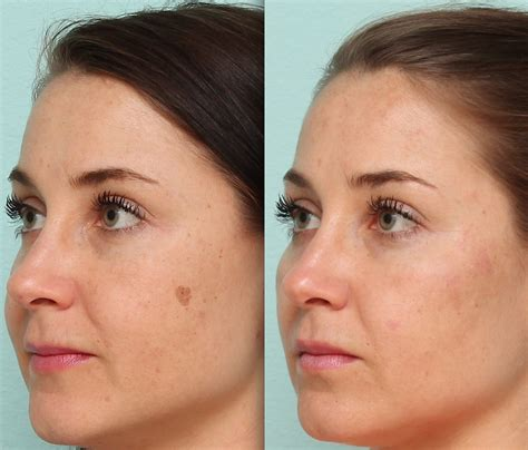 Seeing Light Spots by Laser Skin Clinic Ipl Spots Before After