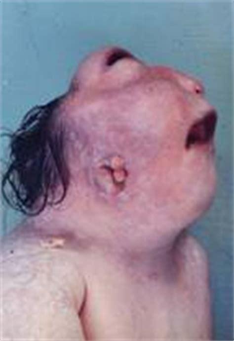 imagenes de niños que nacen con malformaciones malformaciones y deformaciones craneales p 225 gina 2