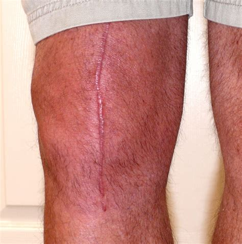 infinity physical therapy treating scar tissue infinity pt