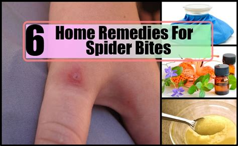 6 top home remedies for spider bites remedy