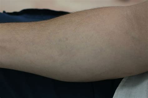 types of lasers for tattoo removal laser removal in nyc westchester bronx by studio