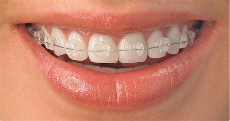with braces clear braces clarendon dental spa leeds