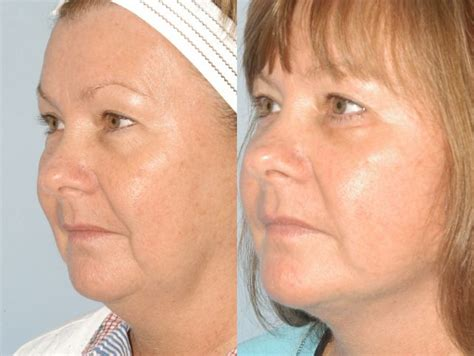 face of 56 year old 52 best images about facelift before after photographs