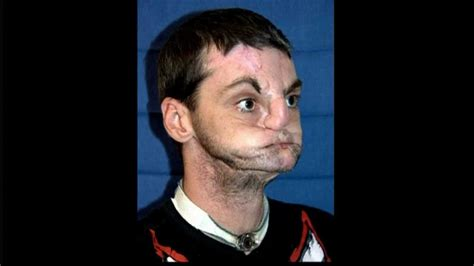 richard norris the world s most extensive face transplant richard norris