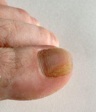 nail bed fungus nail fungus