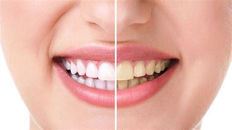 Membersihkan Gigi Kuning Beberapa Penyebab Remeh Warna Gigi Putih Menjadi Kuning Emas