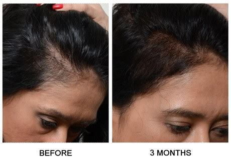womans hair thinning on sides prp treatment for female pattern baldness hair loss nyc