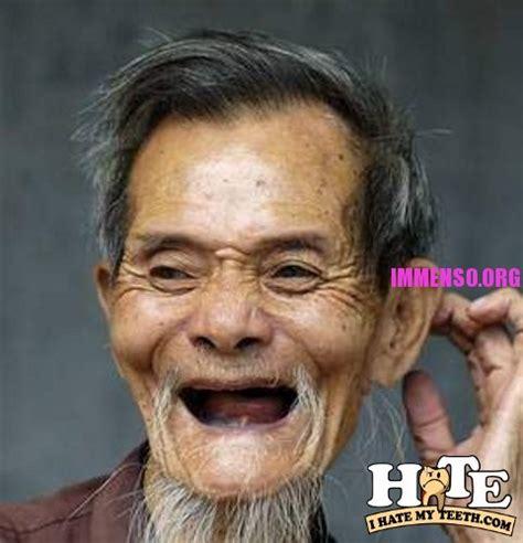 Old Asian Lady Meme - foto di gente senza denti o con bruttissimi denti