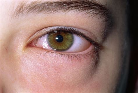 swollen eye pictures of eye problems images of farsightedness nearsightedness cataracts and more