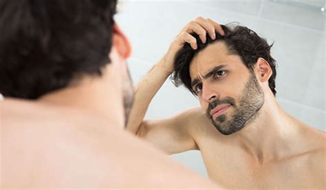 male pattern baldness meaning in tamil 5 reasons why men suffer from hair loss bebeautiful