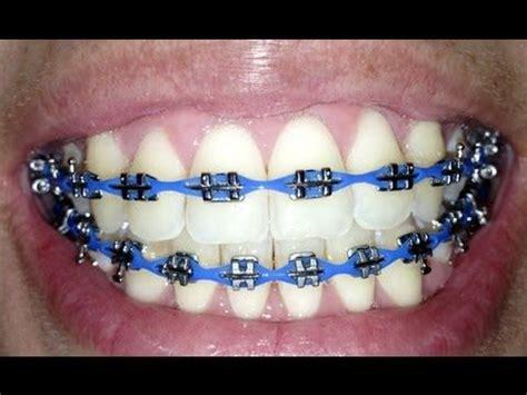 braces quotes power chain braces teeth braces